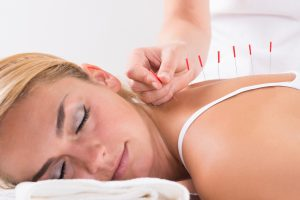 Center for Classical Acupuncture - Acupuncture Treatment